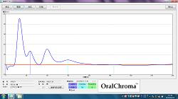 口臭の3成分ガスを高精度で分離測定